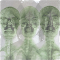 Supergrass/The X-Ray Album